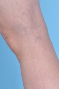 Spider Vein Treatment by Dr. Usha Rajagopal